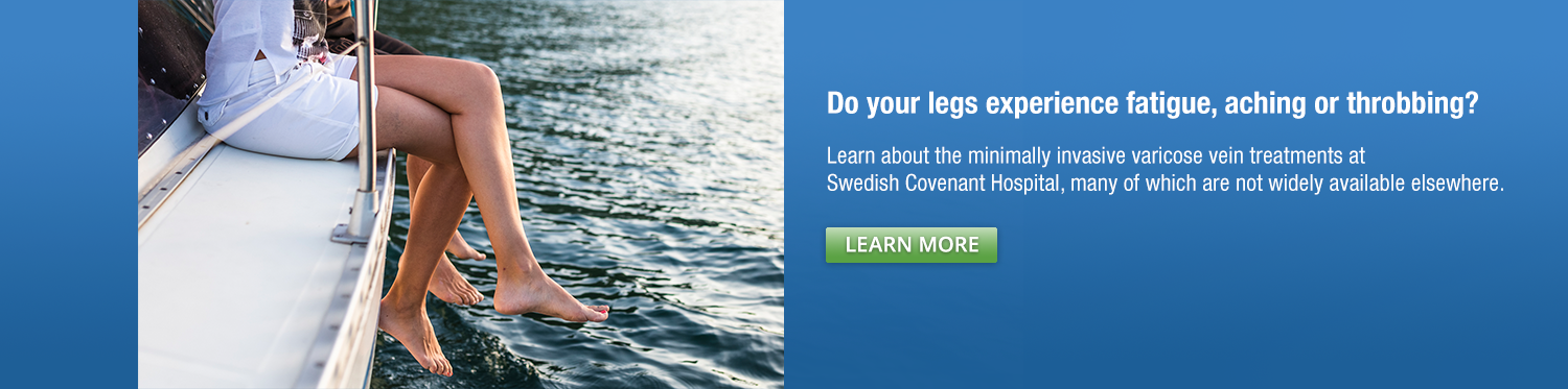 Varicose Veins Treatment at Swedish Covenant Hospital